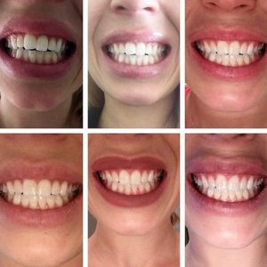 Invisalign-Braces-Berkeley-Heights